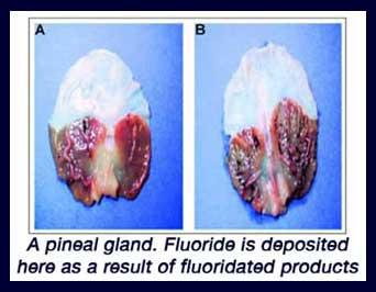 Pineal gland and fluoride | Pearltrees
