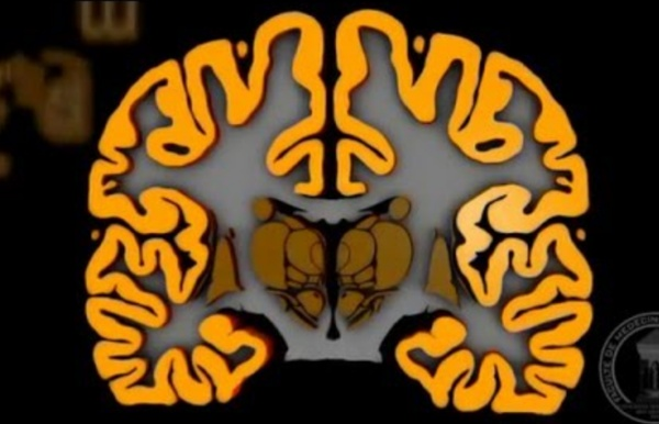 Anatomie du système nerveux : Le cerveau.