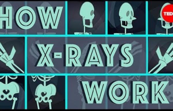 [Rayons X] Comment les rayons X voient à travers votre peau - Ge Wang