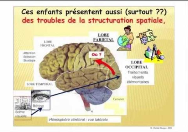 Dyspraxie - Troubles visuo-spatiaux - Par Michèle Mazeau.