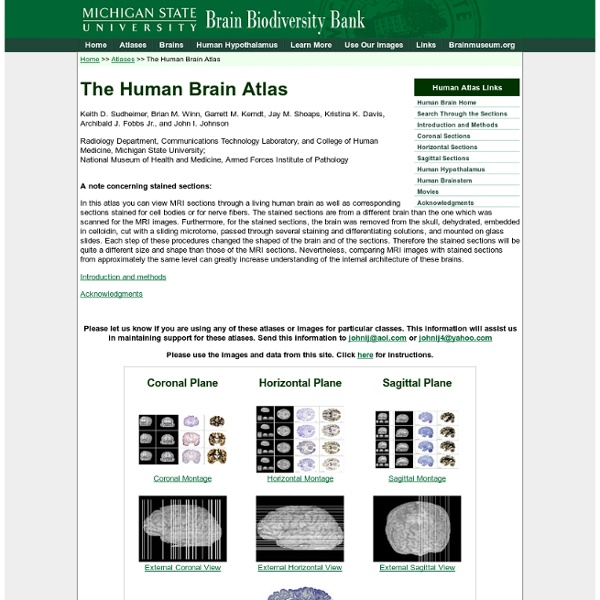 The Human Brain Atlas at Michigan State University