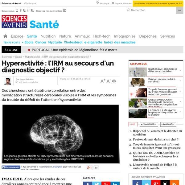 Hyperactivité : l'IRM au secours d'un diagnostic objectif