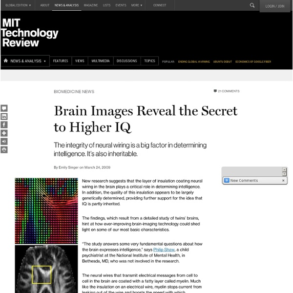 Brain Images Reveal the Secret to Higher IQ