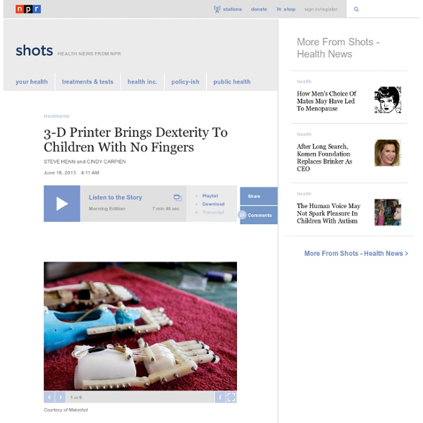 3-D Printer Brings Dexterity To Children With No Fingers : Shots - Health News
