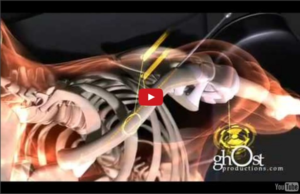 Medical Animation - Heal: ghOst Production's 2009 Orthopedic Demo Reel