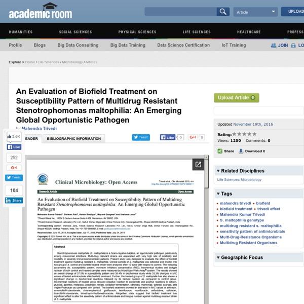 Sensitivity Pattern of Stenotrophomonas Maltophilia Antimicrobials