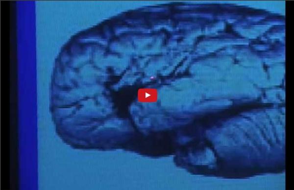 Dans le labyrinthe du cerveau