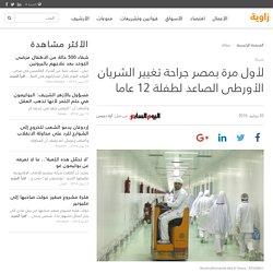 لأول مرة بمصر جراحة تغيير الشريان الأورطى الصاعد لطفلة 12 عاما (صحة)