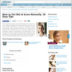 How to Get Rid of Acne Naturally - 10 Easy Tips