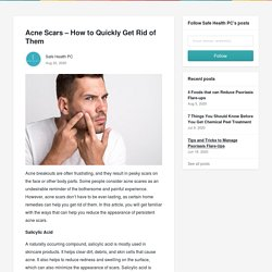 Acne Scars – How to Quickly Get Rid of Them - Safe Health PC