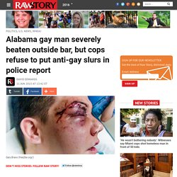 Alabama gay man severely beaten outside bar, but cops refuse to put anti-gay slurs in police report