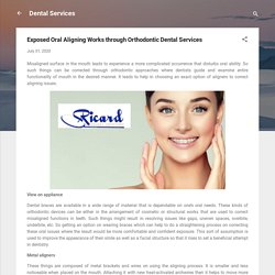 Exposed Oral Aligning Works through Orthodontic Dental Services