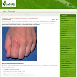 Alternative Solution for Granuloma Annulare Natural Treatment