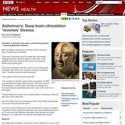 Alzheimer's: Deep brain stimulation 'reverses' disease