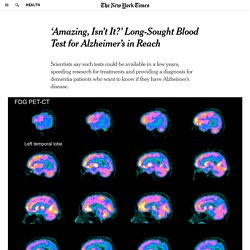 'Amazing, Isn't It?' Long-Sought Blood Test for Alzheimer's in Reach