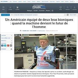 Un Américain équipé de deux bras bioniques : quand la machine devient le futur de l'homme