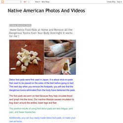 Native American Photos And Videos: -Make Detox Foot Pads at Home and Remove All the Dangerous Toxins from Your Body Overnight it works for me !