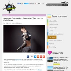 Amputee Gamer Gets Bionic Arm That Has Its Own Drone