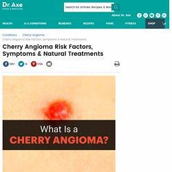 Cherry Angioma Risk Factors, Symptoms & Natural Treatments