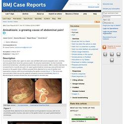 BMJ 11/05/17 Anisakiasis: a growing cause of abdominal pain!