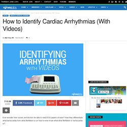 How to Identify Cardiac Arrhythmias (With Videos) - Nurseslabs