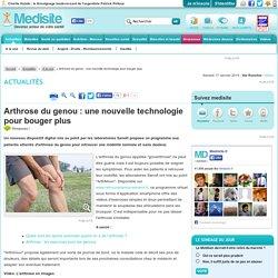 Arthrose du genou : une nouvelle technologie pour bouger plus