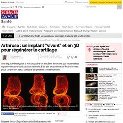 """Arthrose : un implant """"vivant"""" et en 3D pour régénérer le cartilage"""