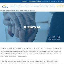 Société de l'arthrite