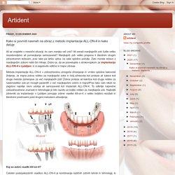 Artident: Kako si povrniti nasmeh na obraz z metodo implantacije ALL-ON-4 in kako deluje