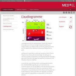 Audiogramme utilisé par l'audiologiste pour illustrer la surdité