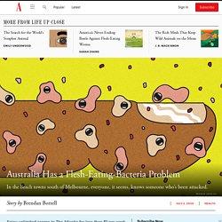 Australia Has a Flesh-Eating-Bacteria Problem