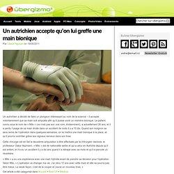Un autrichien accepte qu'on lui greffe une main bionique