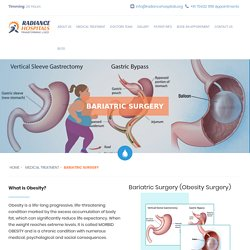 Bariatric Surgery In Ahmedabad - Obesity Surgery - Weight Loss Surgery