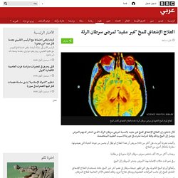 """علوم - العلاج الإشعاعي للمخ """"غير مفيد"""" لمرضى سرطان الرئ"""