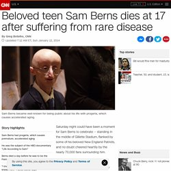 Beloved teen Sam Berns dies at 17 after suffering from rare disease