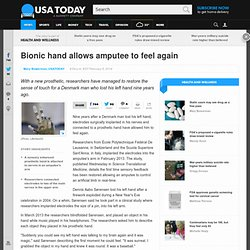 Bionic hand allows amputee to feel again