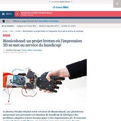 Bionicohand: un projet breton où l'impression 3D se met au service du handicap!