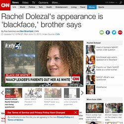 "Rachel Dolezal's biracial appearance is ""blackface,"" brother says"