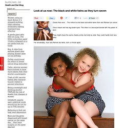 Look at us now: The black and white twins as they turn seven
