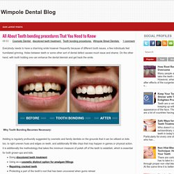 All About Tooth bonding procedures That You Need to Know ~ Wimpole Dental Blog