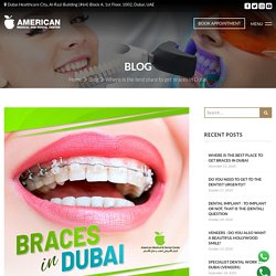 Where is the best place to get braces in Dubai