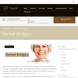 Tooth Bridges at Affordable Cost