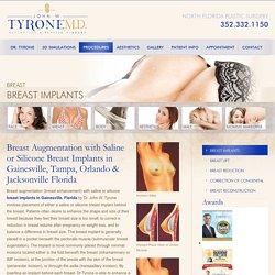 Breast Implants Gainesville