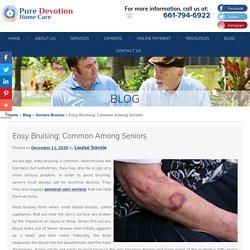 Easy Bruising: Common Among Seniors