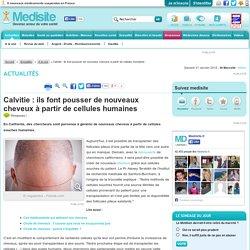 Calvitie : ils font pousser de nouveaux cheveux à partir de cellules humaines