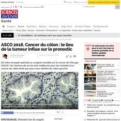 ASCO 2016. Cancer du côlon : le lieu de la tumeur influe sur le pronostic