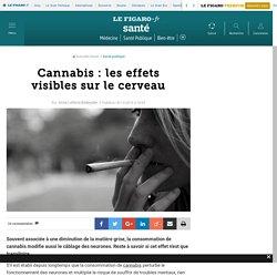 Cannabis : les effets visibles sur le cerveau