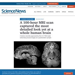 MRI captures the most detailed view yet of a whole human brain