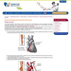 Pontage coronaire - Chirurgie cardiovasculaire et thoracique - Cliniques universitaires Saint-Luc