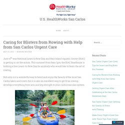 Caring for Blisters from Rowing with Help from San Carlos Urgent Care